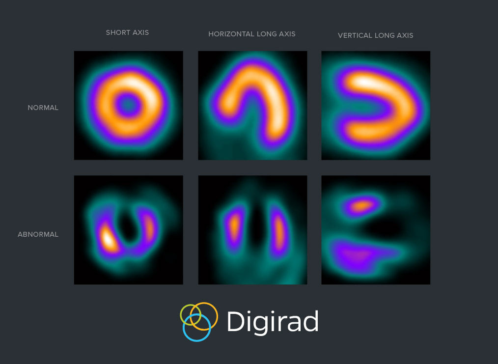 Example of SPECT imaging heart scan