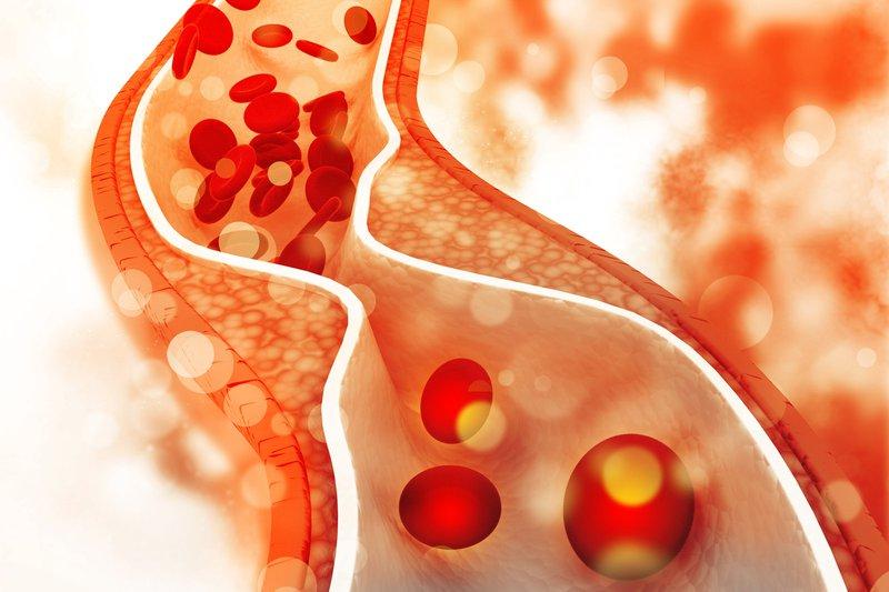 Triple Vessel Disease: Pathology, Diagnosis and Treatment