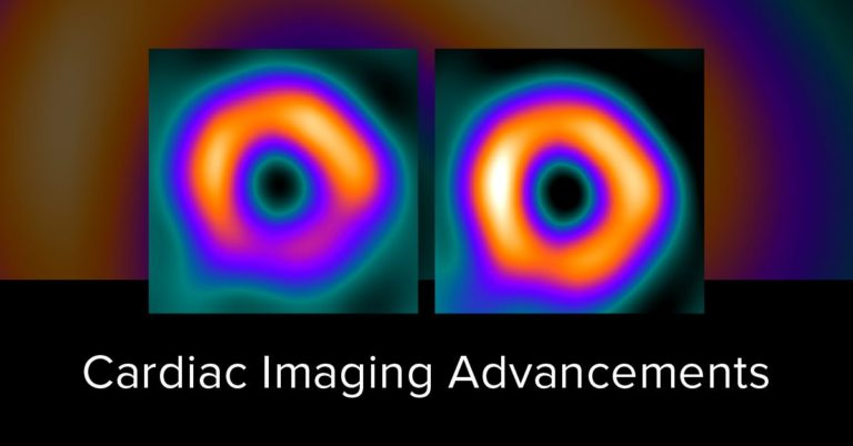 Attenuation Correction and Cardiac Imaging Advancements